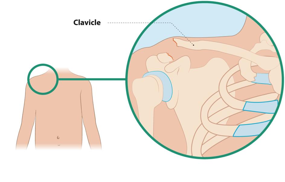 claviclelat1.png