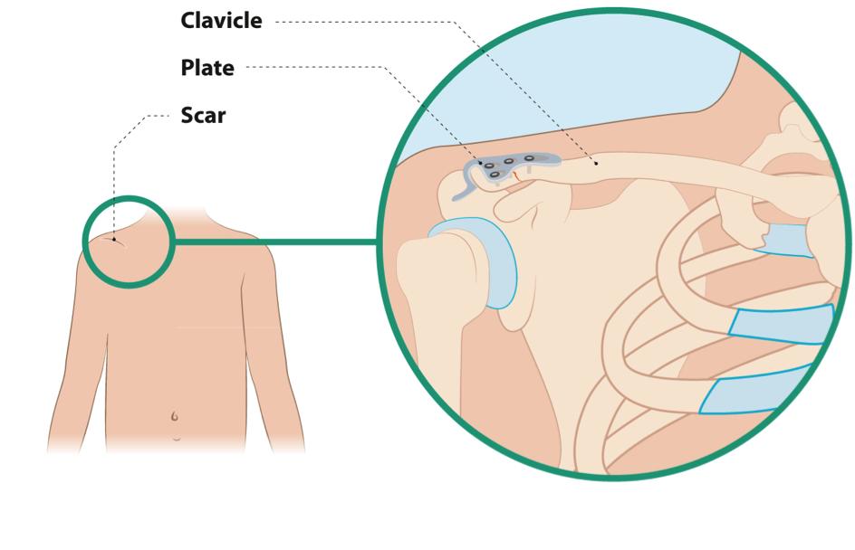 claviclelat2.png